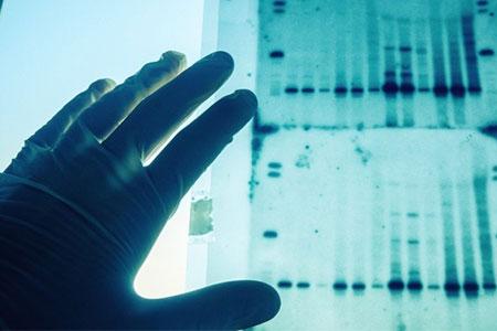 DNA izolacija forenzika